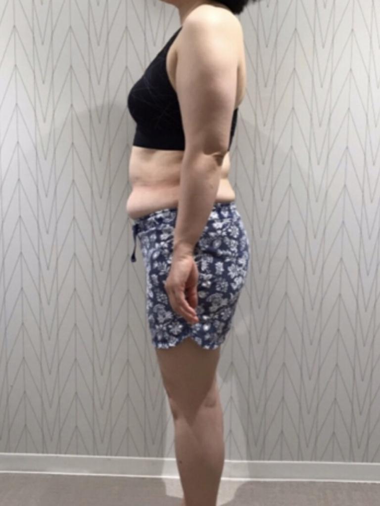 お気に入りのワンピースが着たい!:BEFORE画像