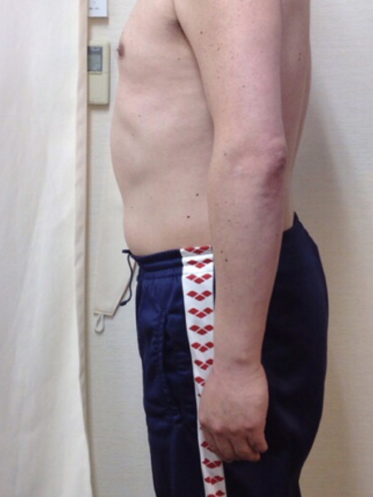 腰痛予防の為に始めました!:BEFORE画像